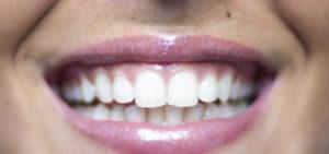 sorriso dentista figlioli palermo